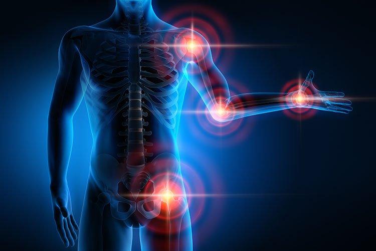 O que é Artrite Reumatóide?